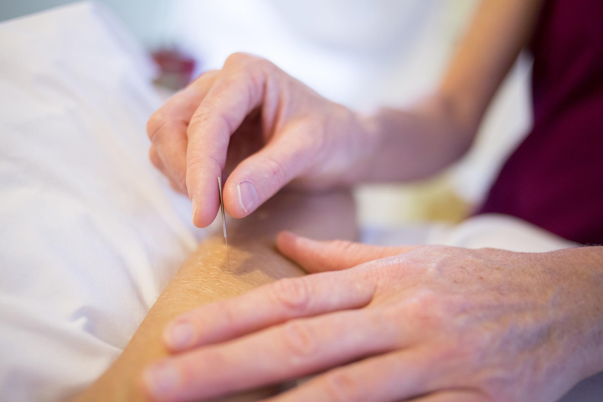 akupunktur behandling ved fysioterapeut